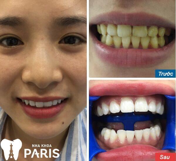 Hình ảnh khách hàng tẩy trắng răng tại Nha khoa Paris