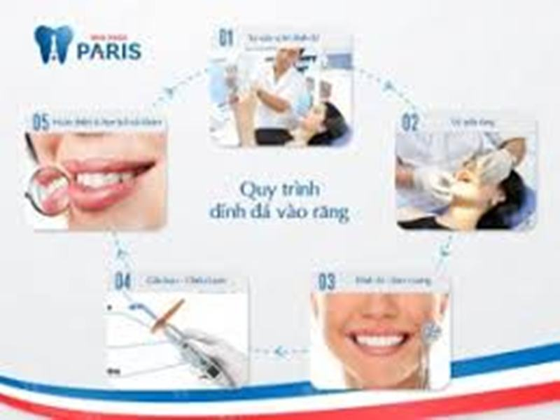 Quy trình đính đá lên răng tại nha khoa Paris