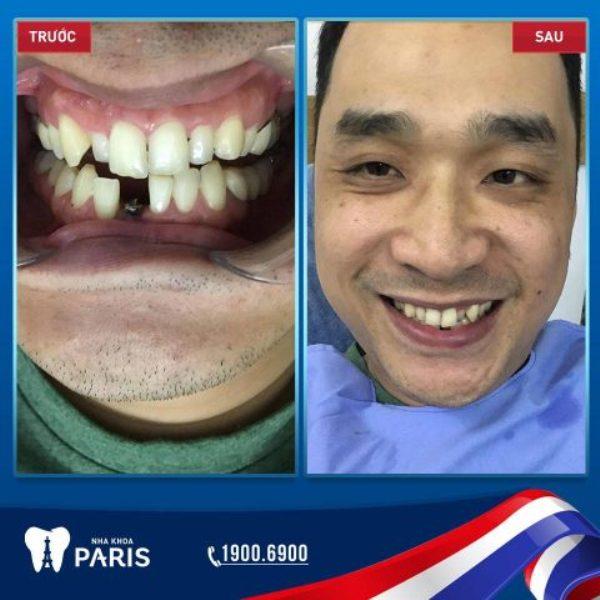 Hình ảnh khách hàng trồng răng Impland tại nha khoa Paris Đà Nẵng