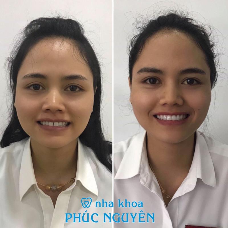 Sau 6 tháng niềng răng, khách hàng của Phúc Nguyên tự tin hơn với nụ cười tỏa sáng