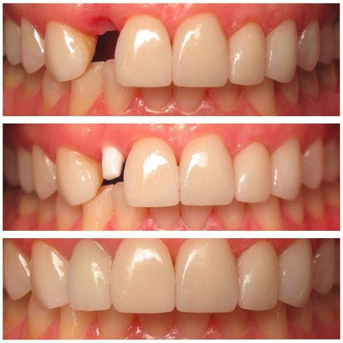 Trước và sau khi làm răng