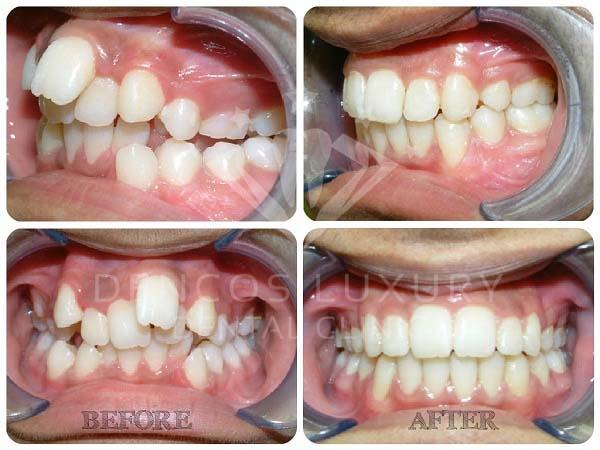 Hình ảnh khách hàng trước và sau niềng răng tại Nha Khoa Quốc Tế Dencos Luxury