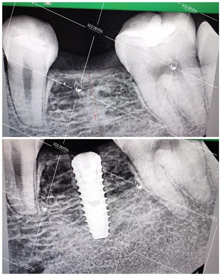 Nha Khoa Quốc Tế SOS Dental