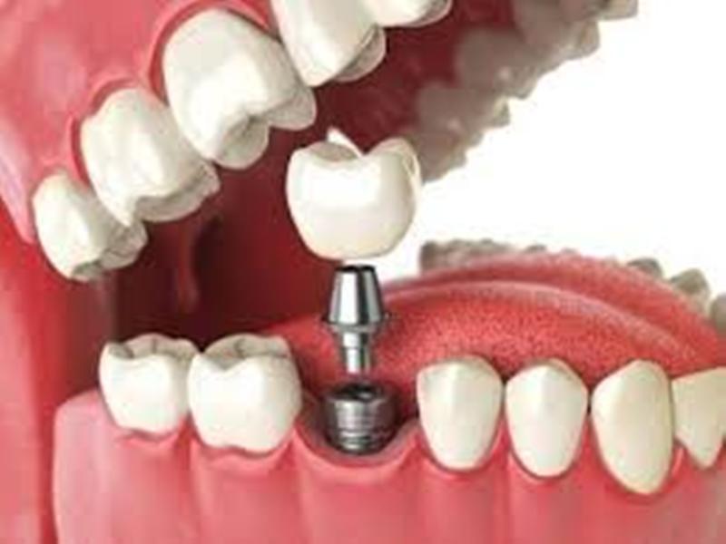 Nha Khoa Tokyo thực hiện kỹ thuật trồng răng Impland khá thành công