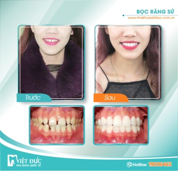 Hình ảnh khách hàng bọc răng sứ tại nha khoa quốc tế Việt Đức