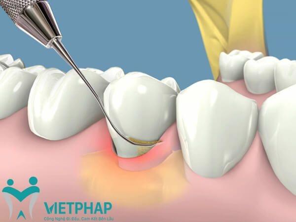 Công nghệ lấy cao răng siêu âm.