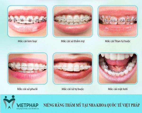 Những loại mắc cài niềng răng thẩm mỹ đang áp dụng tại Việt Pháp