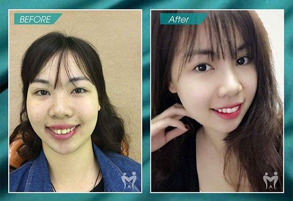 Khách hàng trước và sau bọc răng sứ tại Việt Pháp