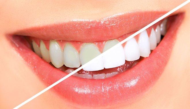 Kết quả tẩy trắng tại Nha khoa Răng Xinh