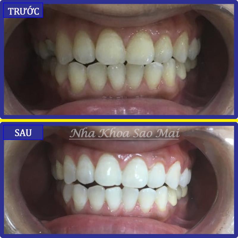 Nha Khoa SAO MAI - Dental Clinic