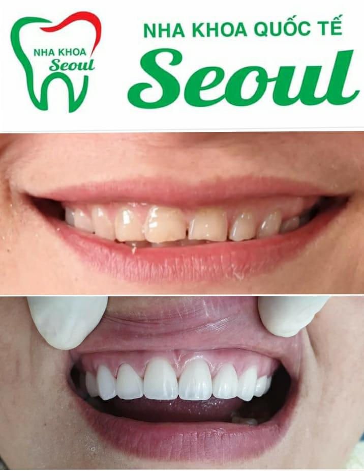 Nha khoa Seoul
