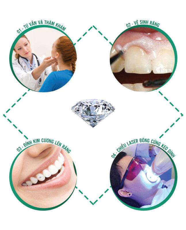 Quy trình đính đá lên răng tại Smile up