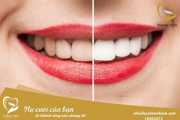 Khách hàng sau khi tẩy trắng răng tại nha khoa Thanh Tâm