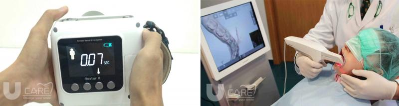 Máy chụp X-quang tại chỗ và thiết bị scan 3D