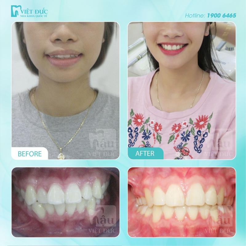 Hình ảnh khách hàng trước và sau niềng răng tại Việt Đức