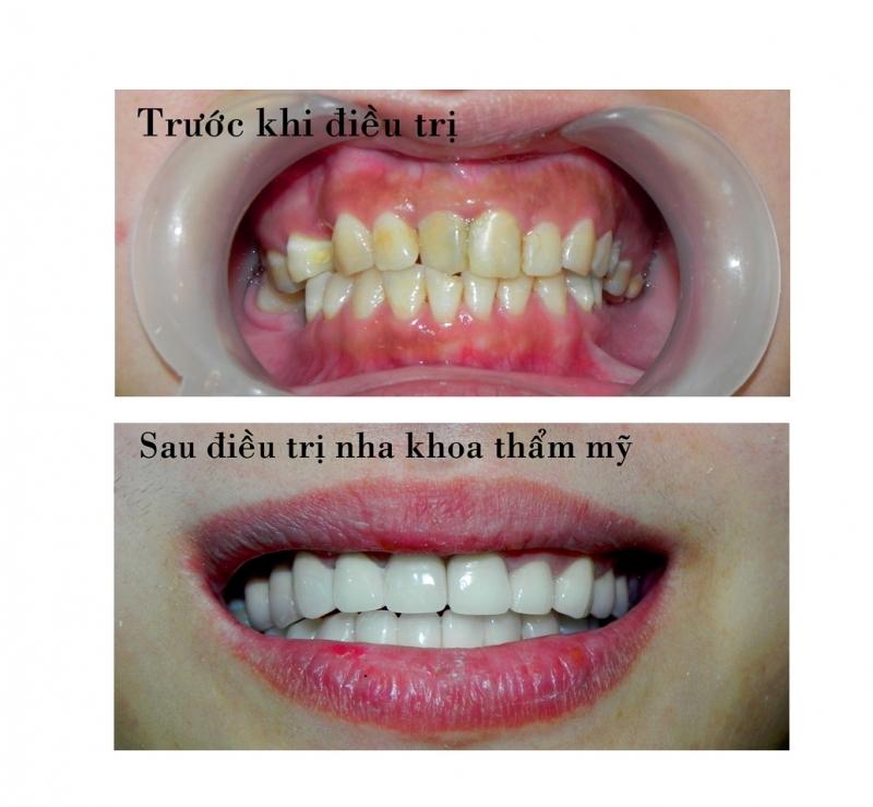 Trước và sau khi điều trị tại nha khoa