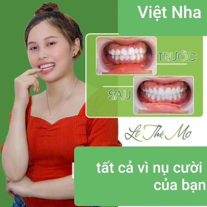 Nha Khoa Việt Nha