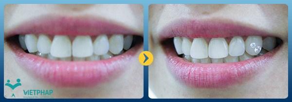 Nụ cười cuốn hút hơn khi đính đá lên răng tại Nha Khoa Quốc Tế Việt Pháp