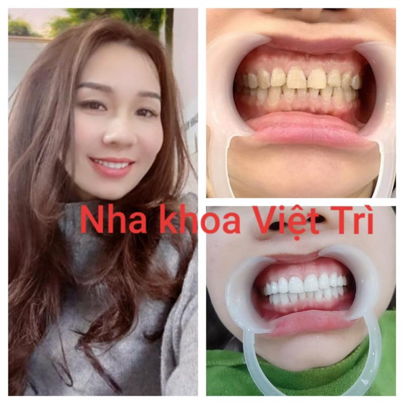 Nha khoa Việt Trì