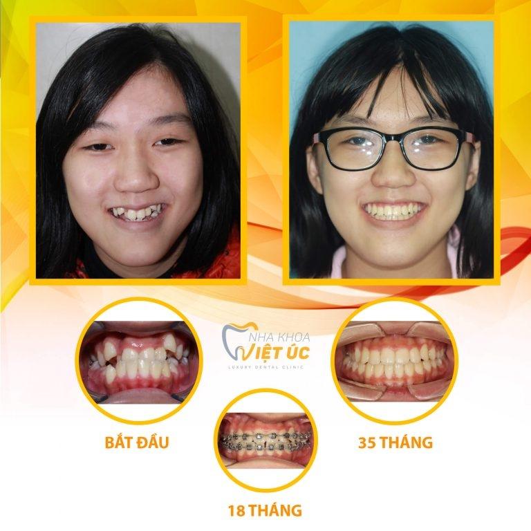 Khách hàng trước và sau điều trị tại nha khoa Việt Úc