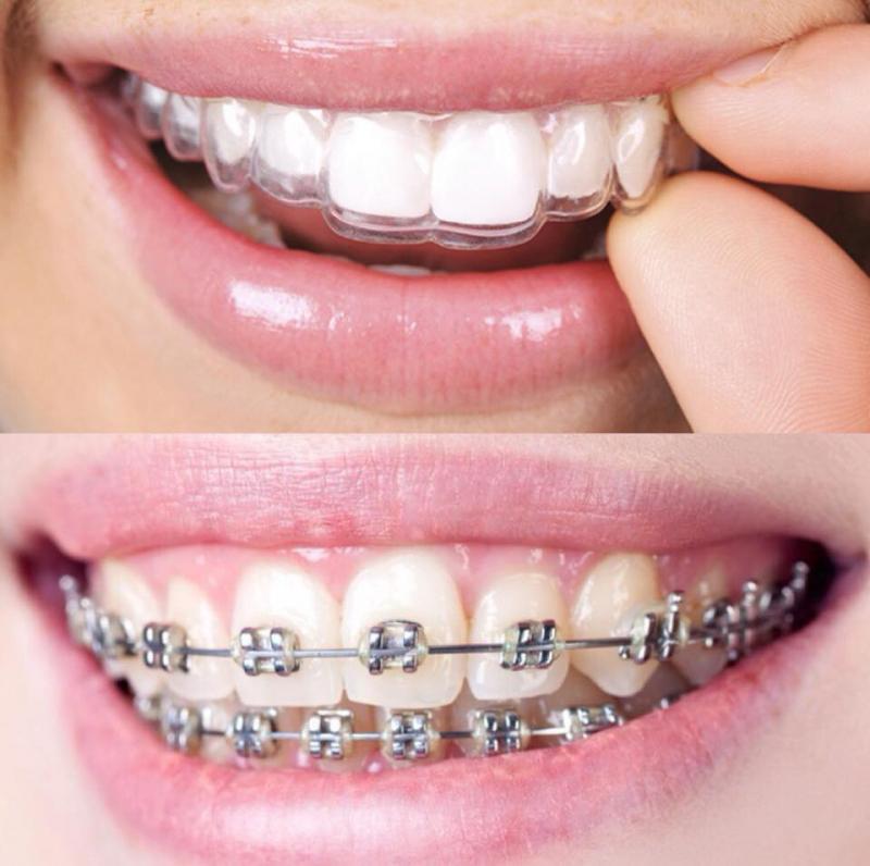 Dịch vụ niềng răng tại nha khoa Vinh