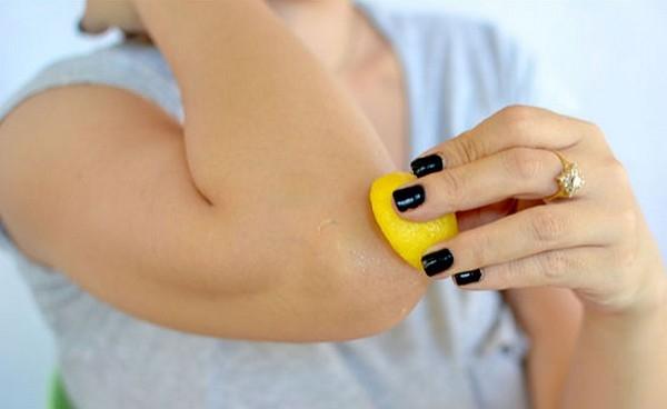 Những nốt vàng xung quanh mắt và khuỷu tay