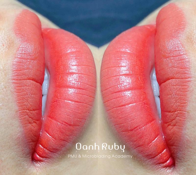 Oanh Ruby - Viện Thẩm Mỹ Công Nghệ Cao