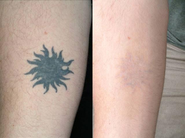 Orion tatoo xóa hình xăm an toàn không để lại sẹo
