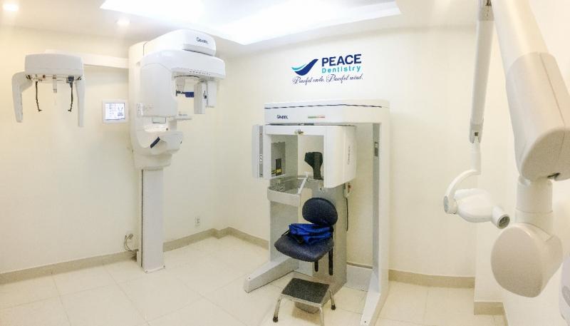 Phòng chụp phim với các hệ thống máy: X-quang, CT Cone Beam, chụp phim quanh chóp của hãng Gendex của Mỹ là những thiết bị hiện đại hàng đầu thế giới