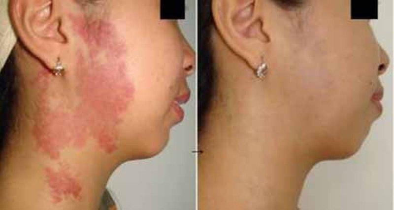 Bệnh eczema là gì? Nguyên nhân, triệu chứng và cách điều trị tốt nhất