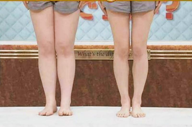 Đùi và bắp chân