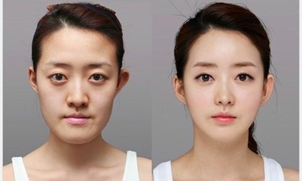 Phẫu thuật thẩm mỹ tại Hàn Quốc