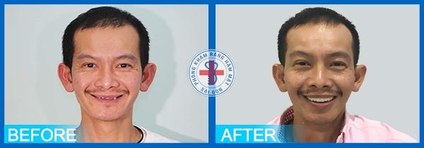 Khách hàng trước và sau trồng răng implant tại Răng hàm mặt Sài Gòn