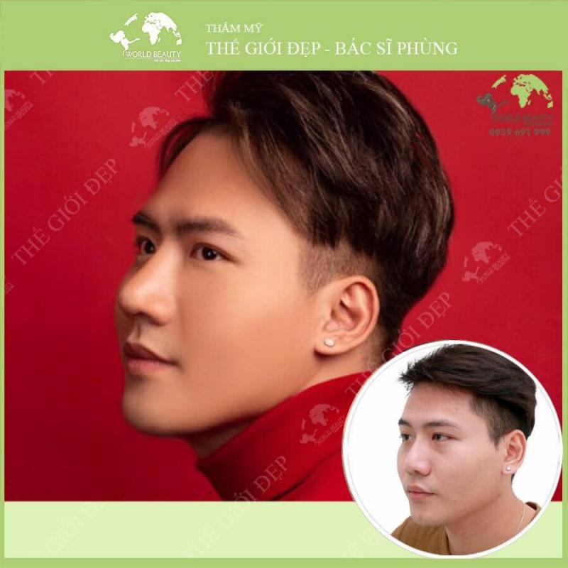 Phòng khám chuyên khoa phẫu thuật thẩm mỹ Thế Giới Đẹp - bác sĩ Nguyễn Văn Phùng