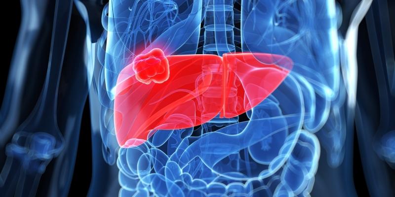 Tỏi có tác dụng phòng ngừa cũng như hỗ trợ điều trị ung thư dạ dày, ung thư gan,...