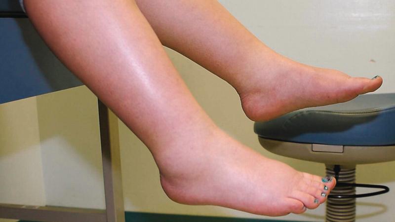 Phù chân là dấu hiệu của suy thận