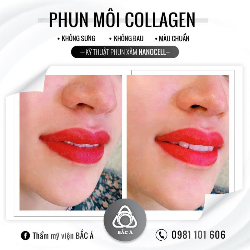 Phun môi collagen tại Bắc Á Cần Thơ