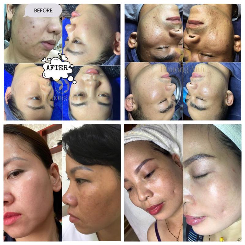 Phương Anh Spa & Clinic