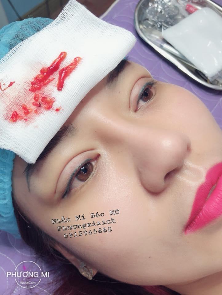 Phuongmixinh Nhấn Mí (Candice Mai)