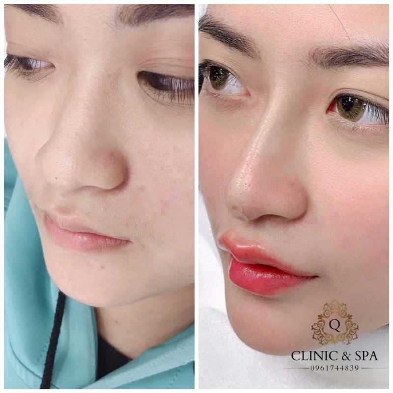Q Clinic Spa