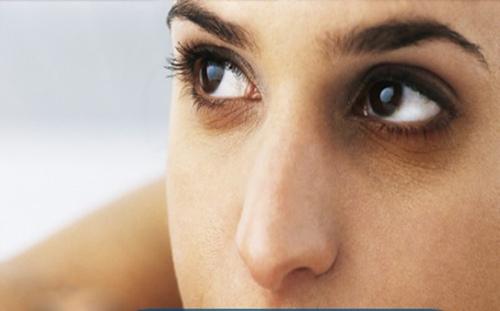 Quầng thâm hình tròn dưới mắt