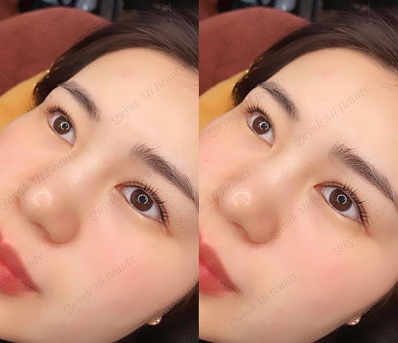 Quỳnh Mi