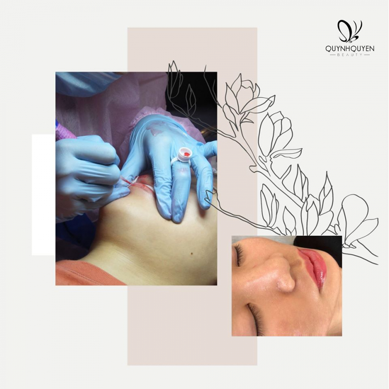 QuynhQuyen Beauty Center