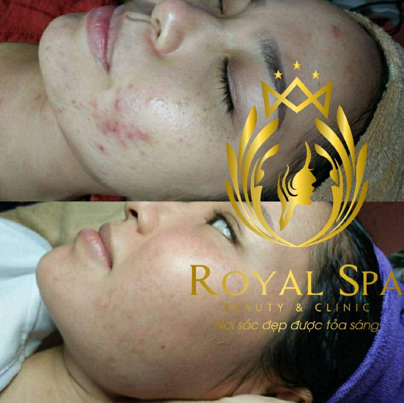 Royal Spa - Beauty & Clinic