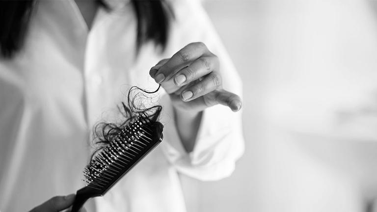 Rụng tóc là một triệu chứng gây nhiều rắc rối cho phụ nữ trong thời kỳ mãn kinh.