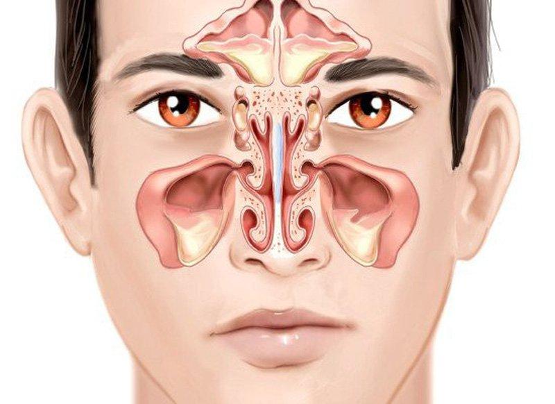 Sản phẩm điều trị viêm mũi, viêm xoang ESHA