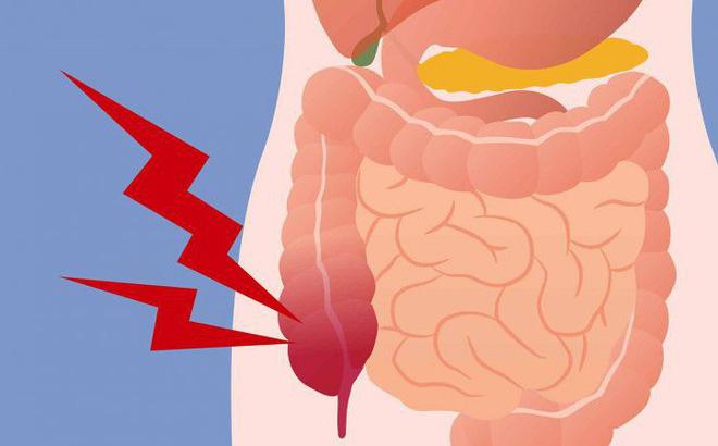 Top 5 Sản phẩm giúp thải độc ruột, thanh lọc cơ thể tốt nhất