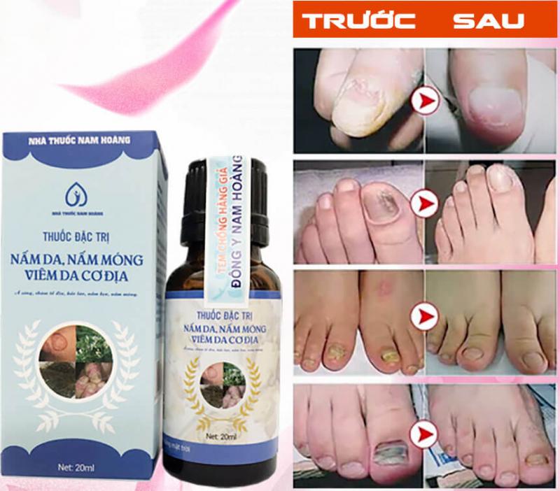 Sản phẩm trị nấm móng tay, móng chân Nam Hoàng