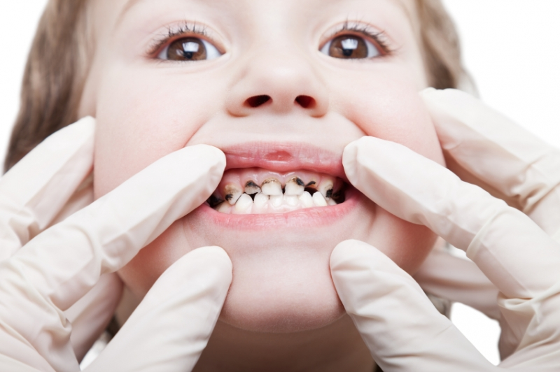 Trẻ chậm mọc răng hay sâu răng