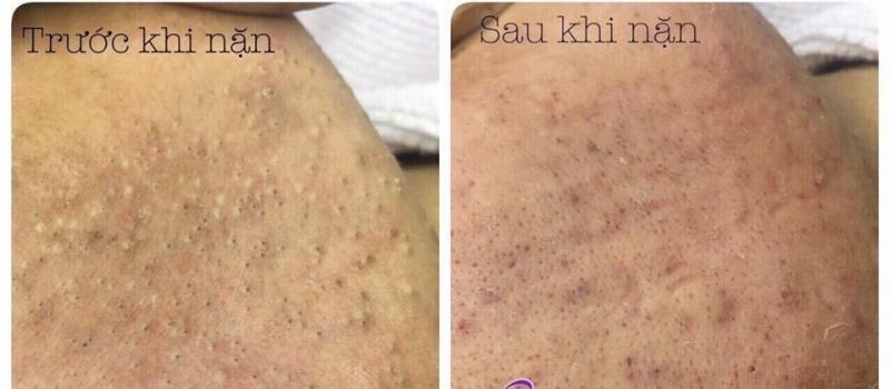 Hình ảnh da khách hàng trước và sau khi nặn mụn